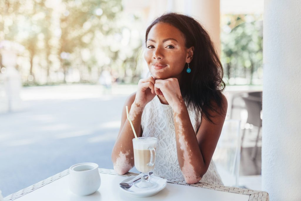 consumer-health:-treating-vitiligo