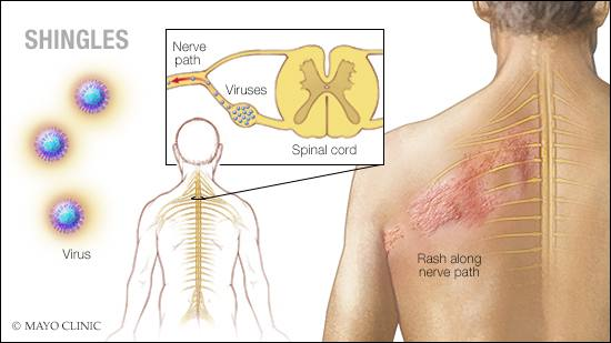 shingles-vaccine:-should-i-get-it?