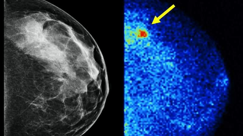 mayo-clinic-q-and-a:-dense-breast-tissue-and-molecular-breast-imaging