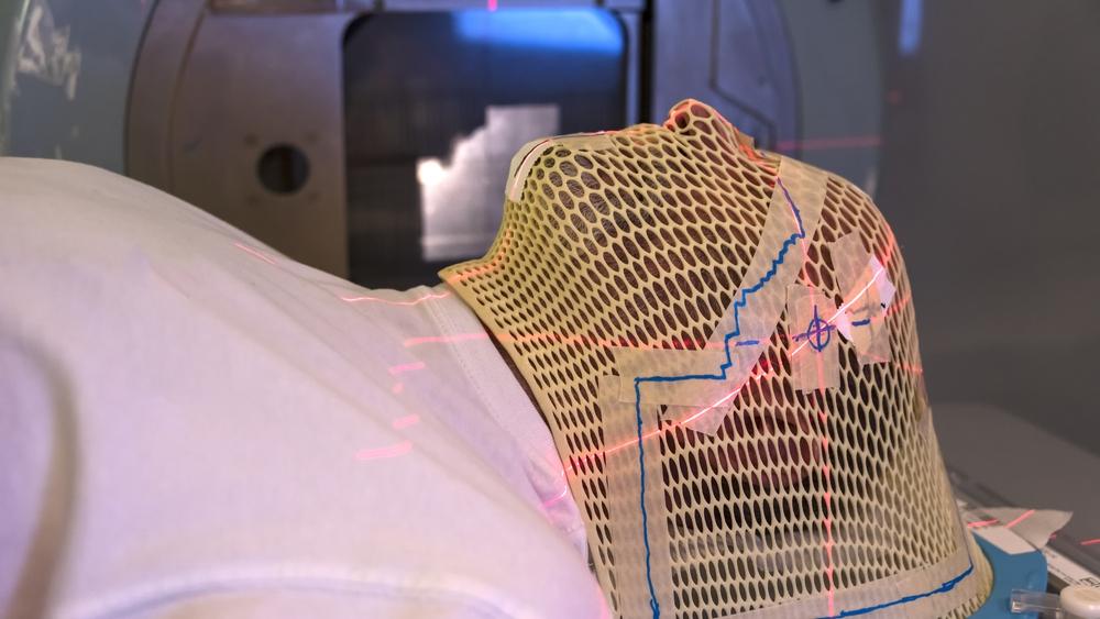 mayo-clinic-y-google-emprenden-una-iniciativa-de-inteligencia-artificial-para-radioterapia