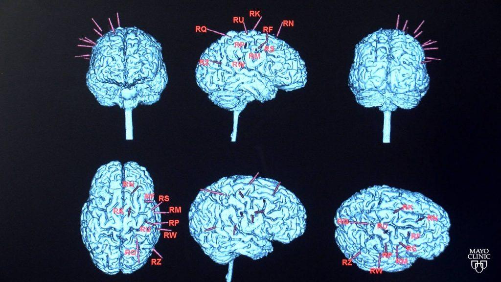 epilepsy-and-seizure-disorder-awareness