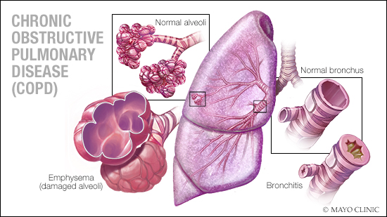 consumer-health:-what-do-you-know-about-copd?