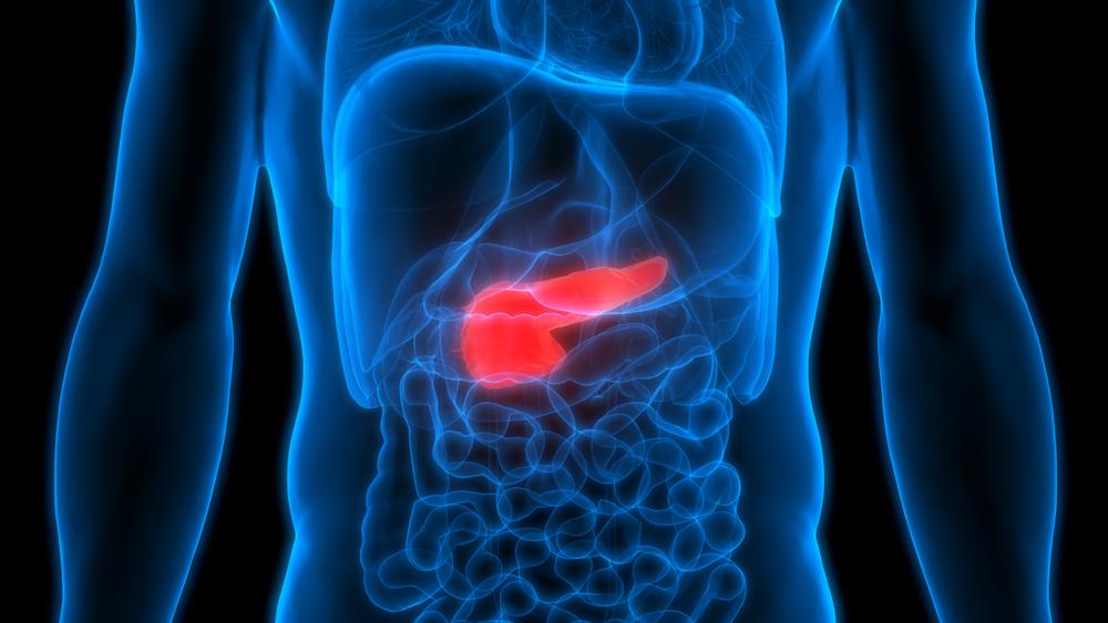 advertencia-del-experto:-nuevos-cambios-en-el-pronostico-del-cancer-de-pancreas