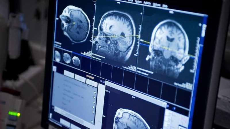 concienciacion-sobre-la-epilepsia-y-el-trastorno-convulsivo