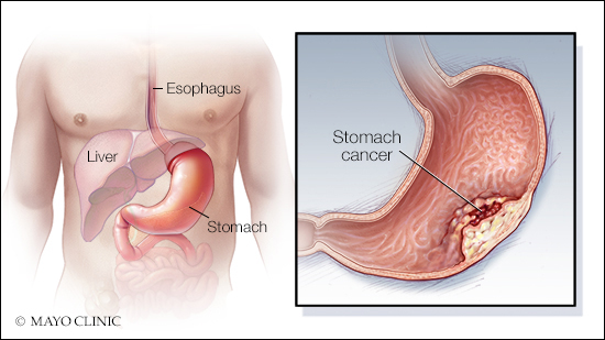 consumer-health:-stomach-cancer-—-risk-factors-and-prevention