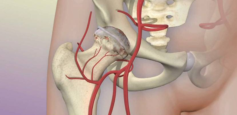 mayo-clinic-q&a-podcast:-regenerative-medicine-offers-an-alternative-to-hip-replacement