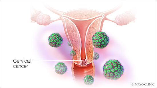 mayo-clinic-q&a-podcast:-screening-can-catch-cervical-cancer-early