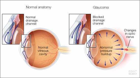 consumer-health:-understanding-glaucoma
