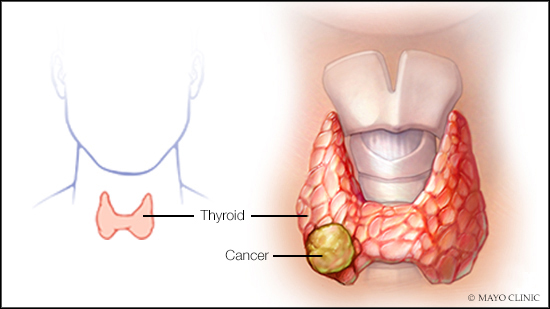 consumer-health:-treating-thyroid-cancer
