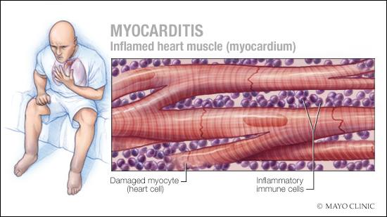 inflammation-of-the-heart-and-covid-19