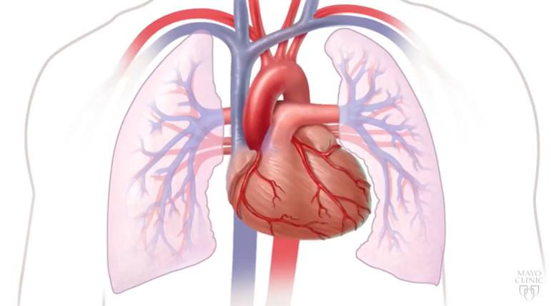 mayo-clinic-minute:-what-is-heart-disease?