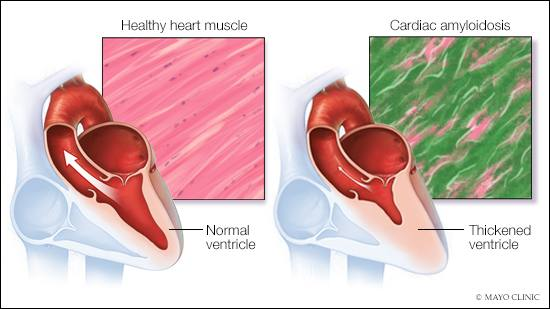 mayo-clinic-q&a-podcast:-symptoms-for-cardiac-amyloidosis-overlap-with-other-conditions