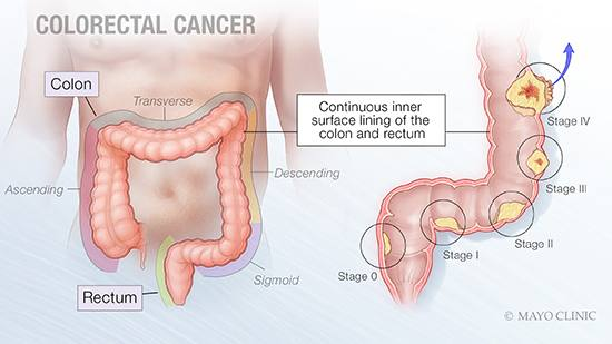 mayo-clinic-q&a-podcast:-screening-for-colorectal-cancer-can-be-prevention