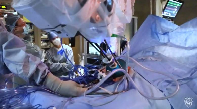 mayo-clinic-minute:-first-of-its-kind-surgery-helping-patients-with-lymphedema