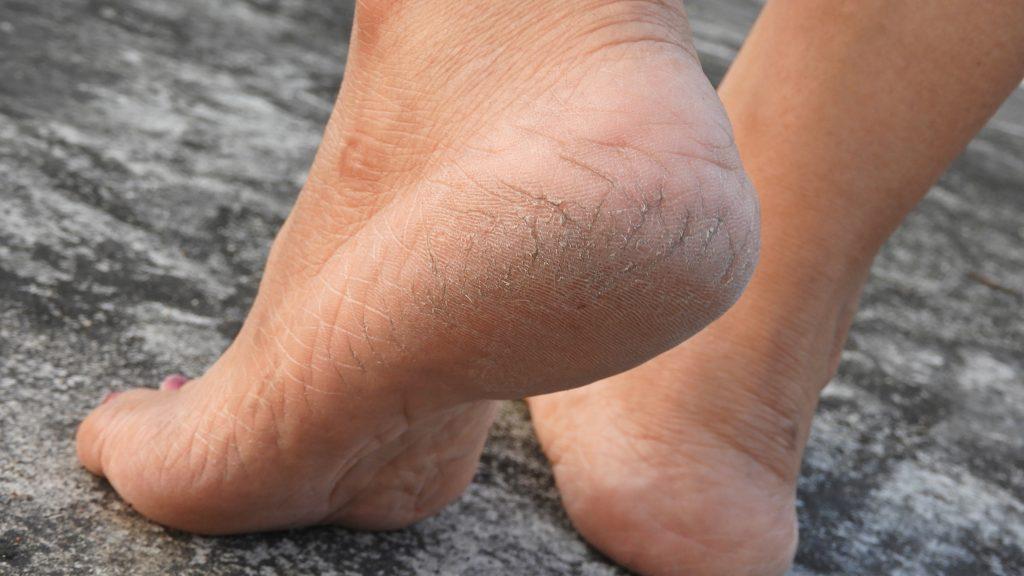 how-to-heal-cracked-heels