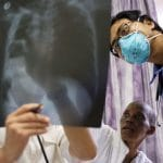 the-fight-against-covid-9-has-taken-resources-from-other-diseases-like-tb