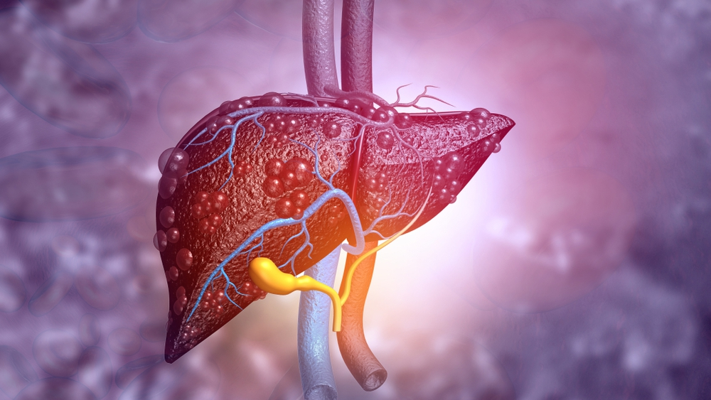 mayo-clinic-q-and-a:-living-liver-donation