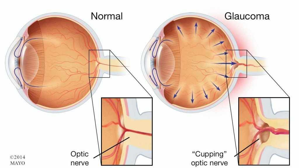 mayo-clinic-q&a-podcast:-avoid-preventable-vision-loss